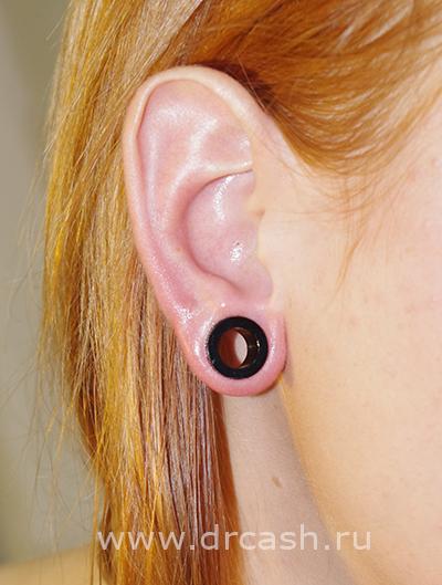 туннели 3 мм в ушах фото