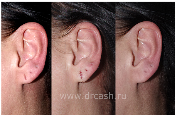уплотнение в внутри уха прсле прокола кишечник, масло одновременно