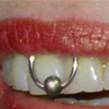 Пирсинг уздечек во рту (Piercing bridles oral)